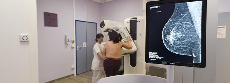 Dépistage du cancer du sein par tomosynthèse